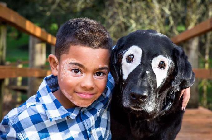 皮膚病を患い自分の姿が嫌いだった少年。同じ病の犬との出会い、自分の姿を受け入れ前向きになる